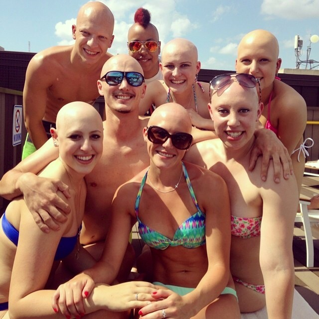 dating with alopecia areata